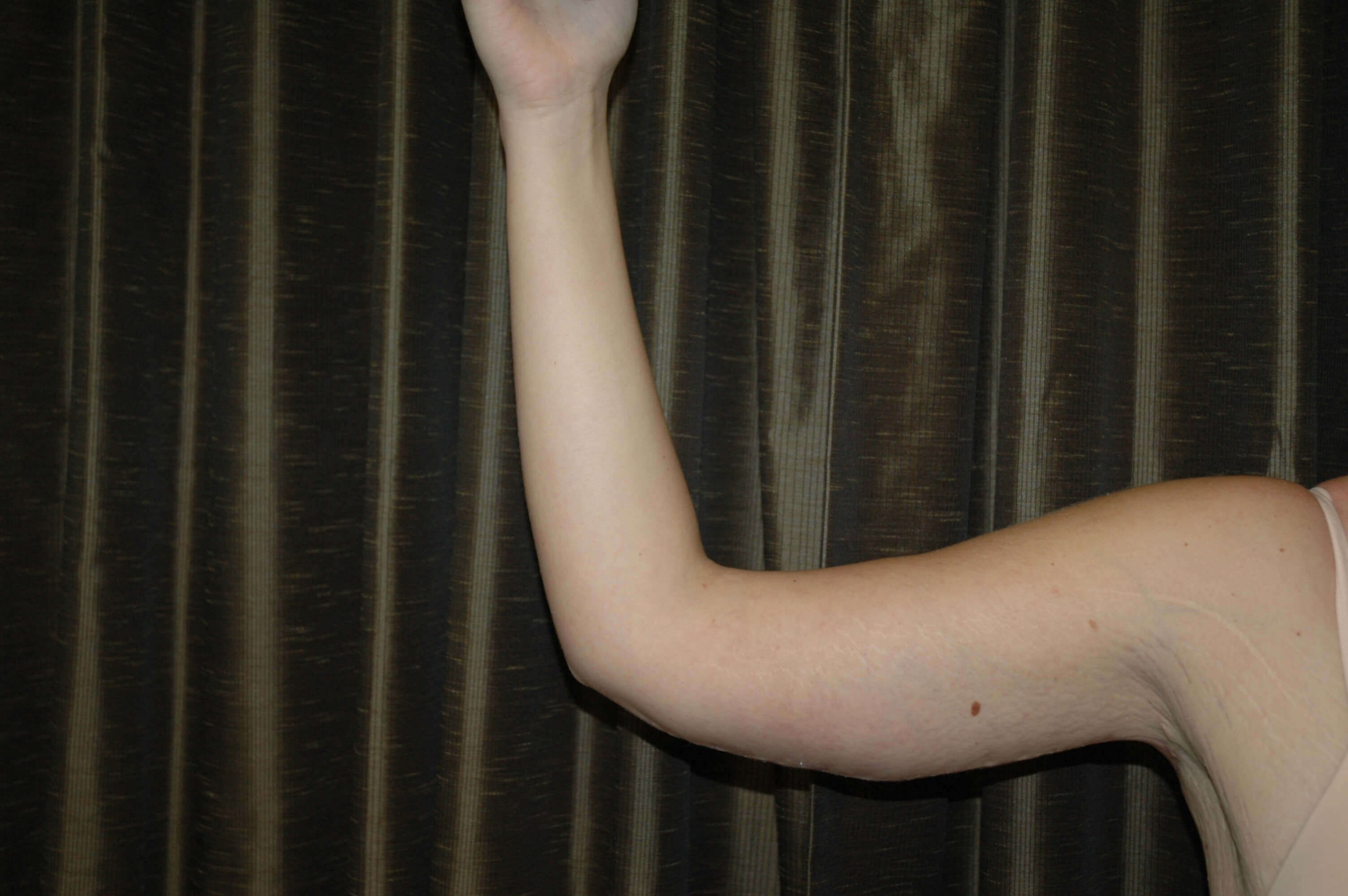 Arm lift plastic surgery pics After