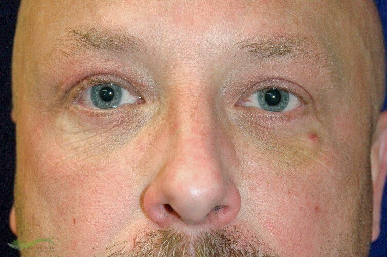 Lower Eyelid Plastic Surgery After