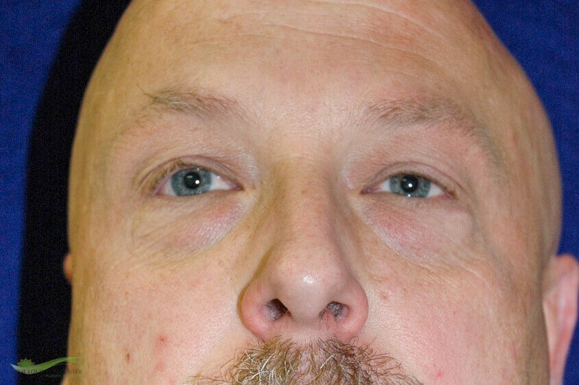 Lower Eyelid Plastic Surgery Before