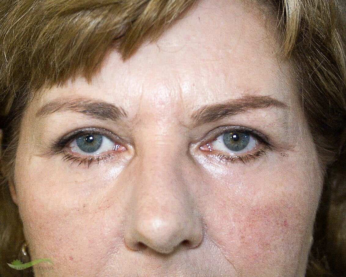Eyelid and Laser Surgery After