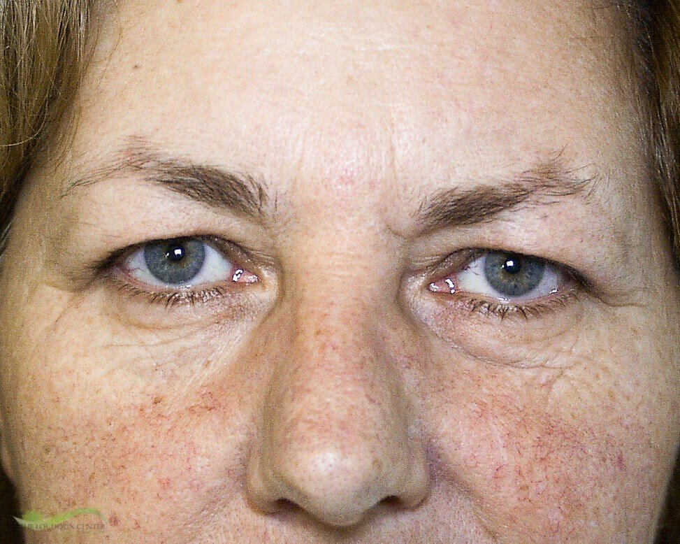 Eyelid and Laser Surgery Before