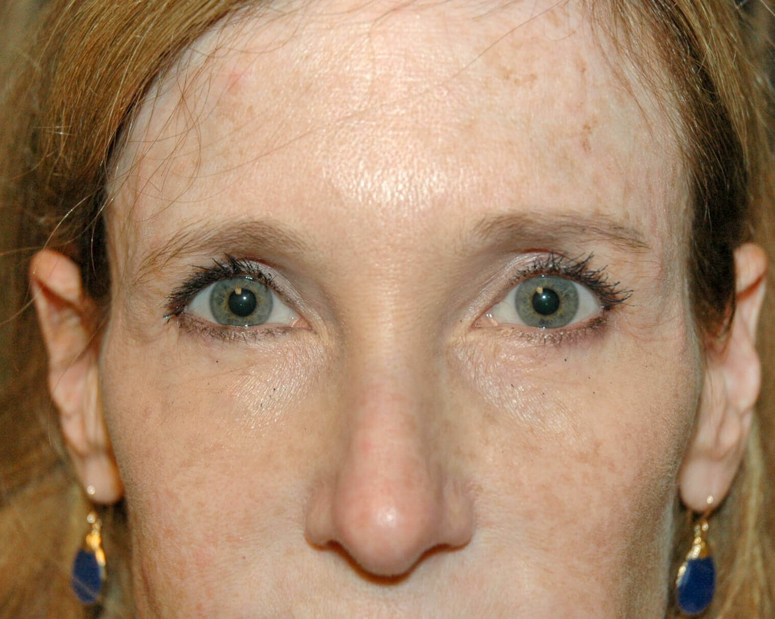 Upper Eyelid Plastic Surgery After