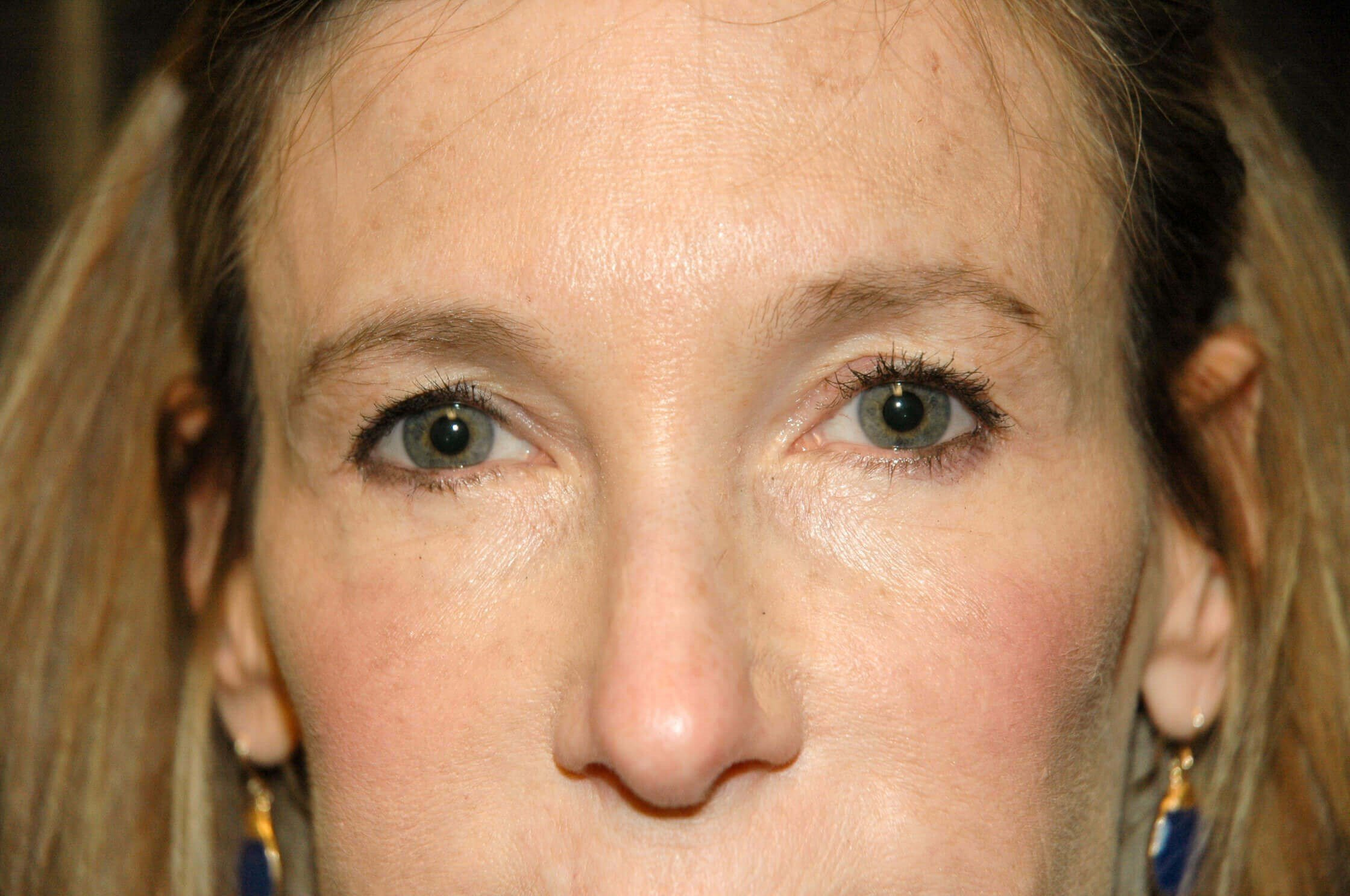 Upper Eyelid Plastic Surgery Before