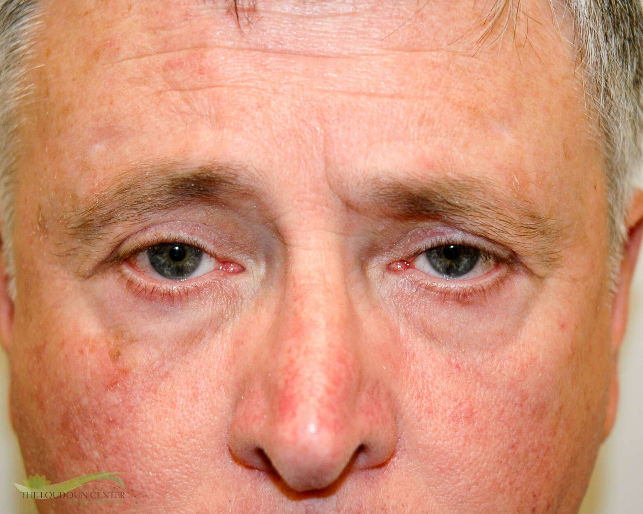 Male Upper Eyelid Surgery After