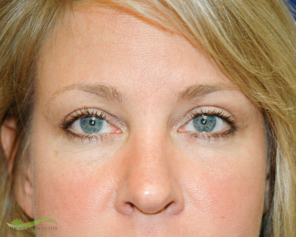 Upper Eyelid Blepharoplasty Six Months After