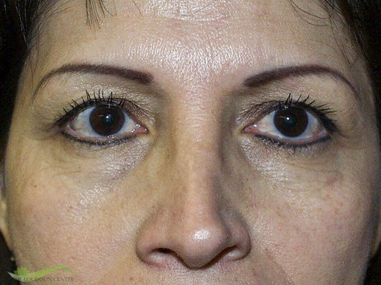 Upper Eyelid Surgery Before