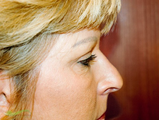Eyelid Surgery - Profile After