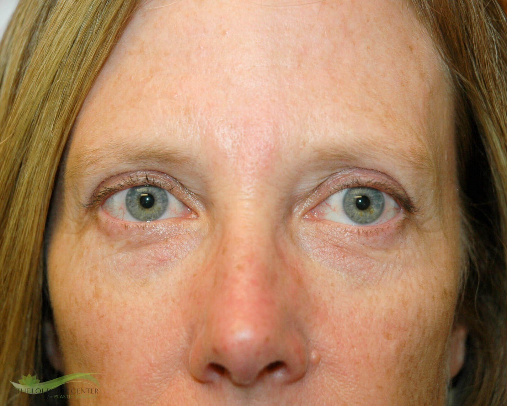 Upper Eyelid Blepharoplasty After
