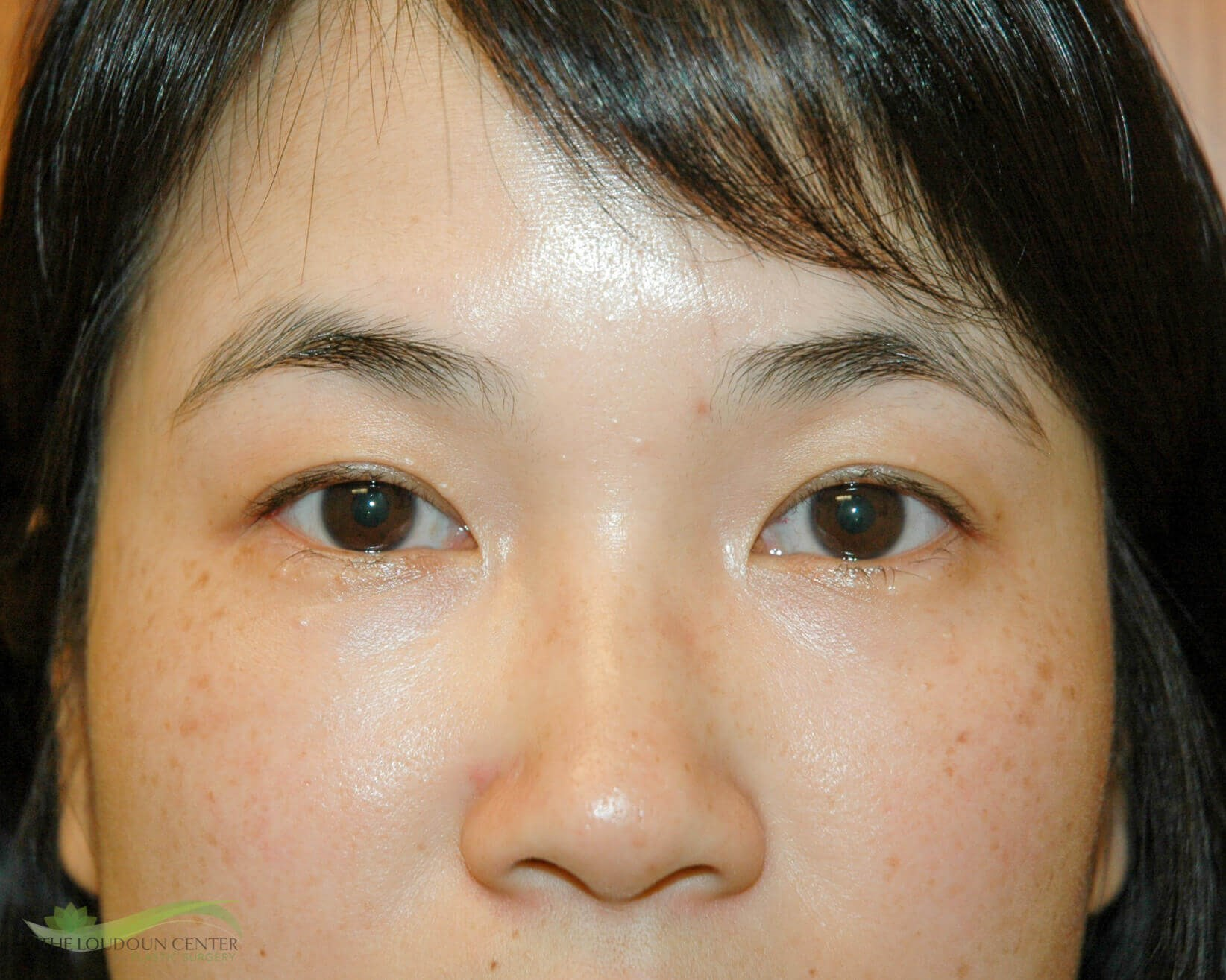 Asian Upper Eyelid Surgery Before