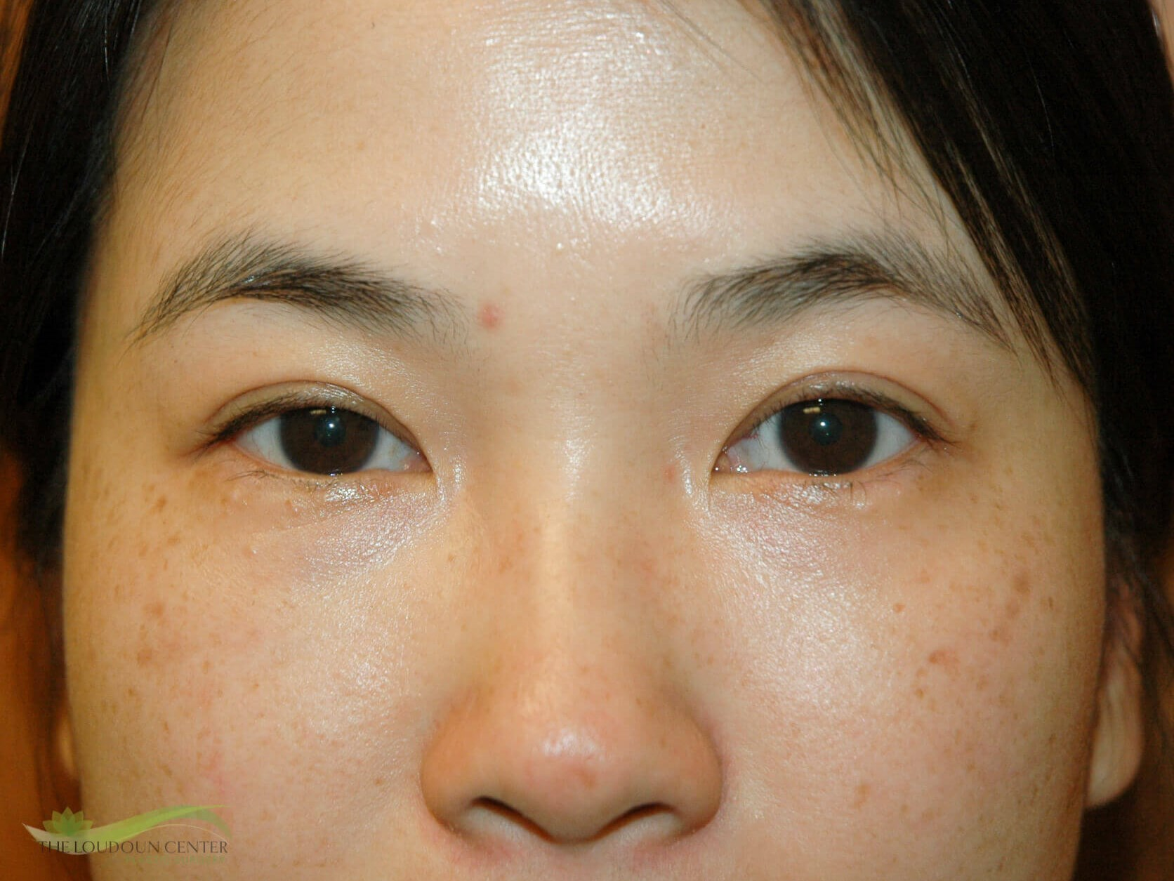 Asian Upper Eyelid Surgery After