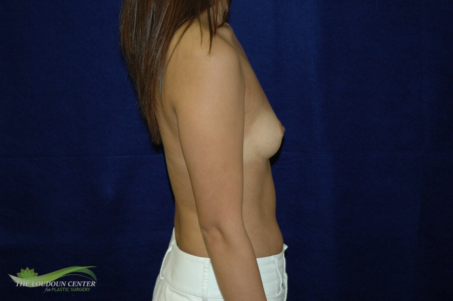 Breast Augmentation - Side Before