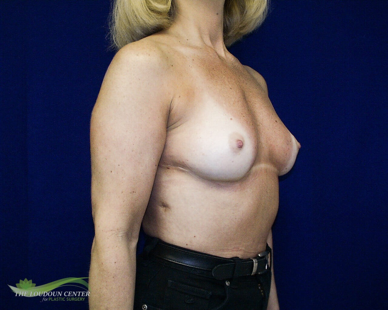 Breast Augmentation - Oblique Before