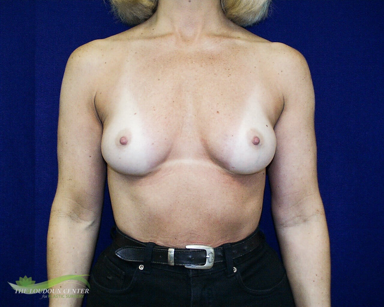 Breast Augmentation - Frontal Before