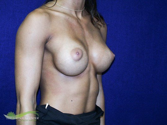 Breast Augmentation - Oblique After