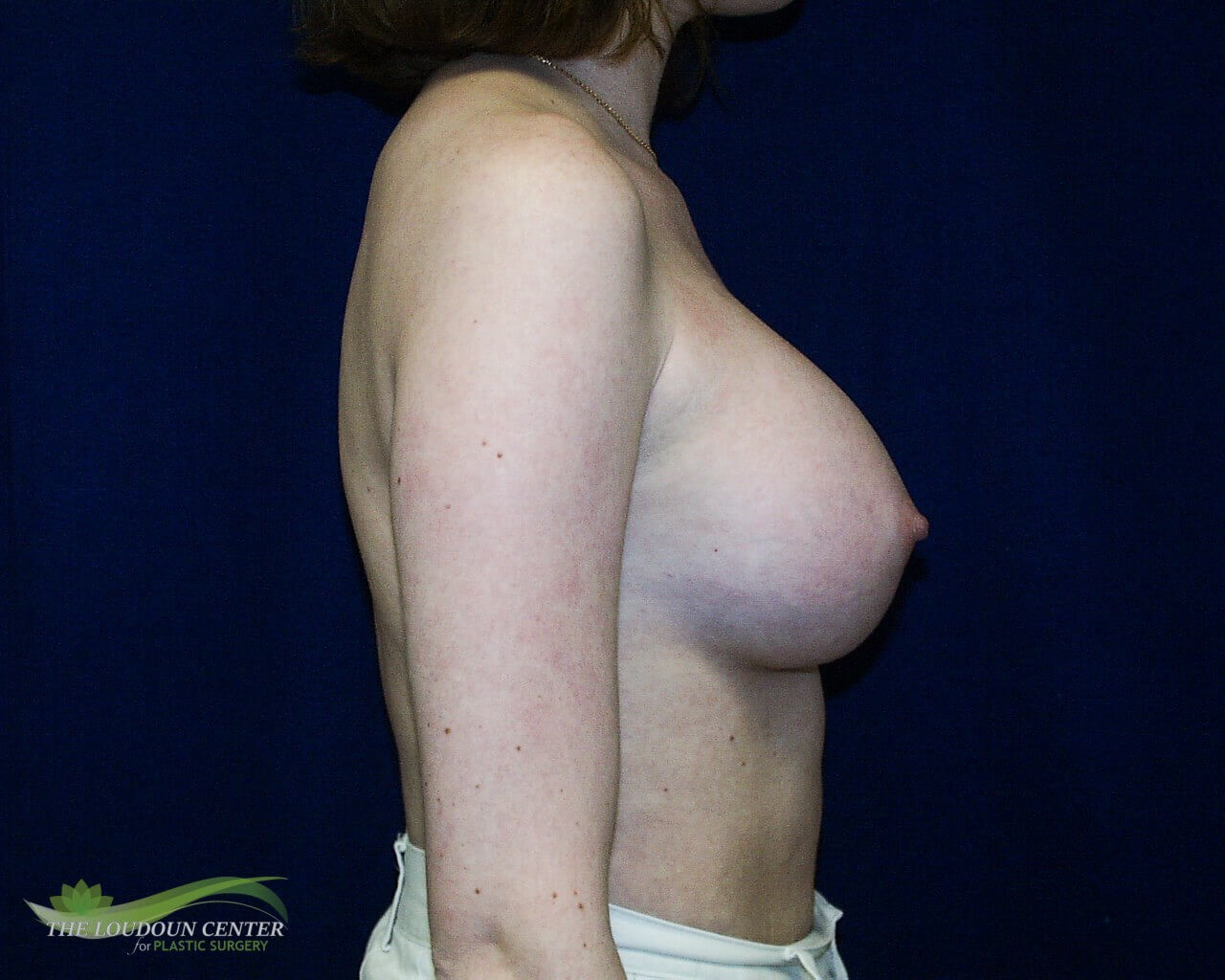 Breast Augmentation - Profile After