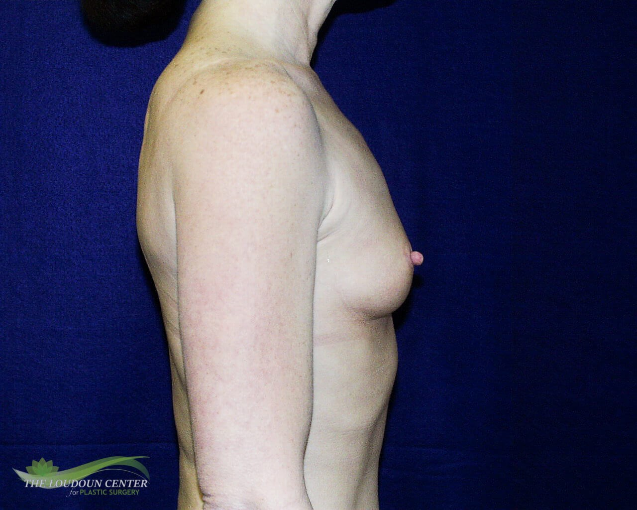 Breast Augmentation - Profile Before
