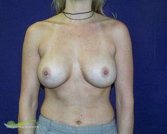 Breast Augmentation - Frontal After
