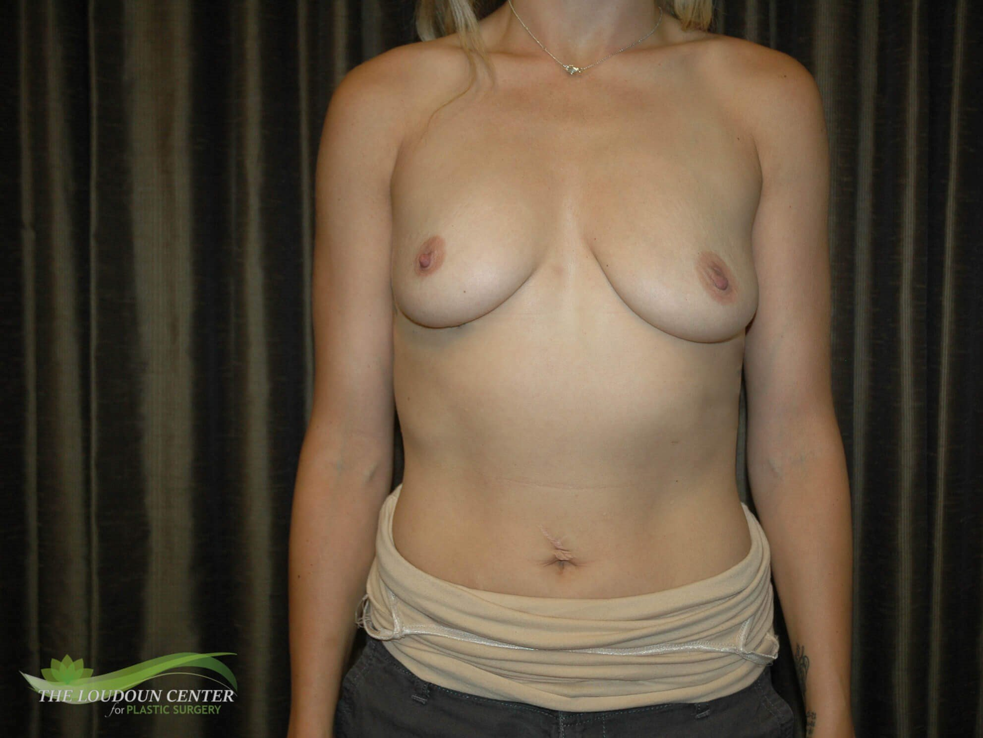 Breast Augmentation Left Lift Before
