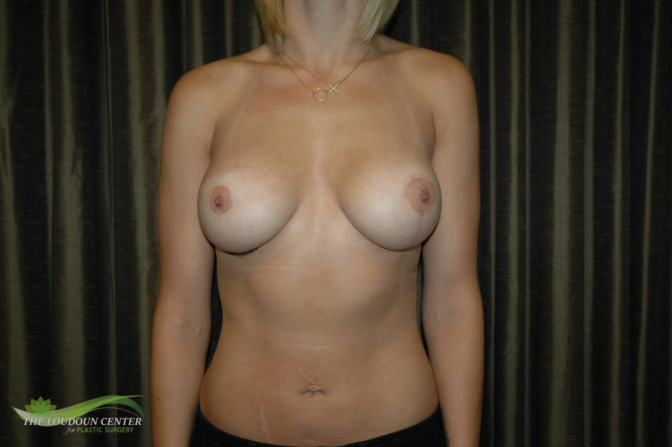 Breast Augmentation Left Lift After