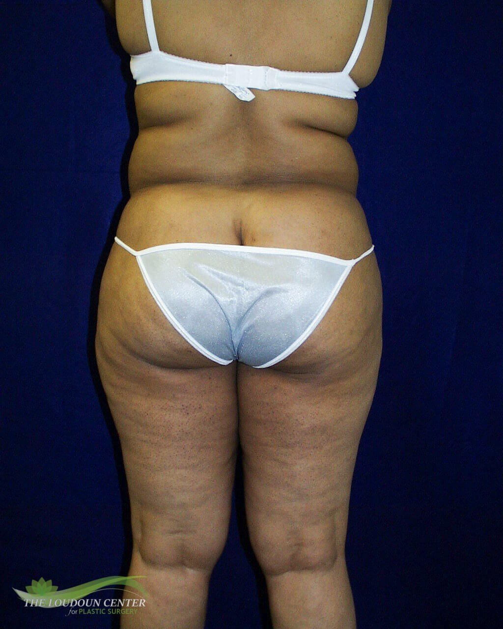 Liposuction Contouring Before
