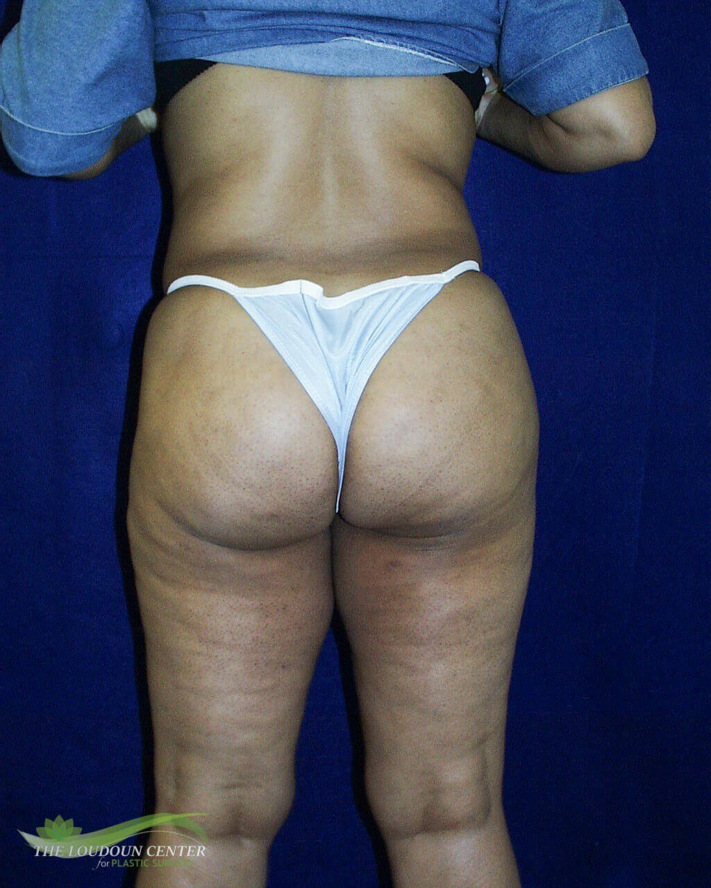 Liposuction Contouring After