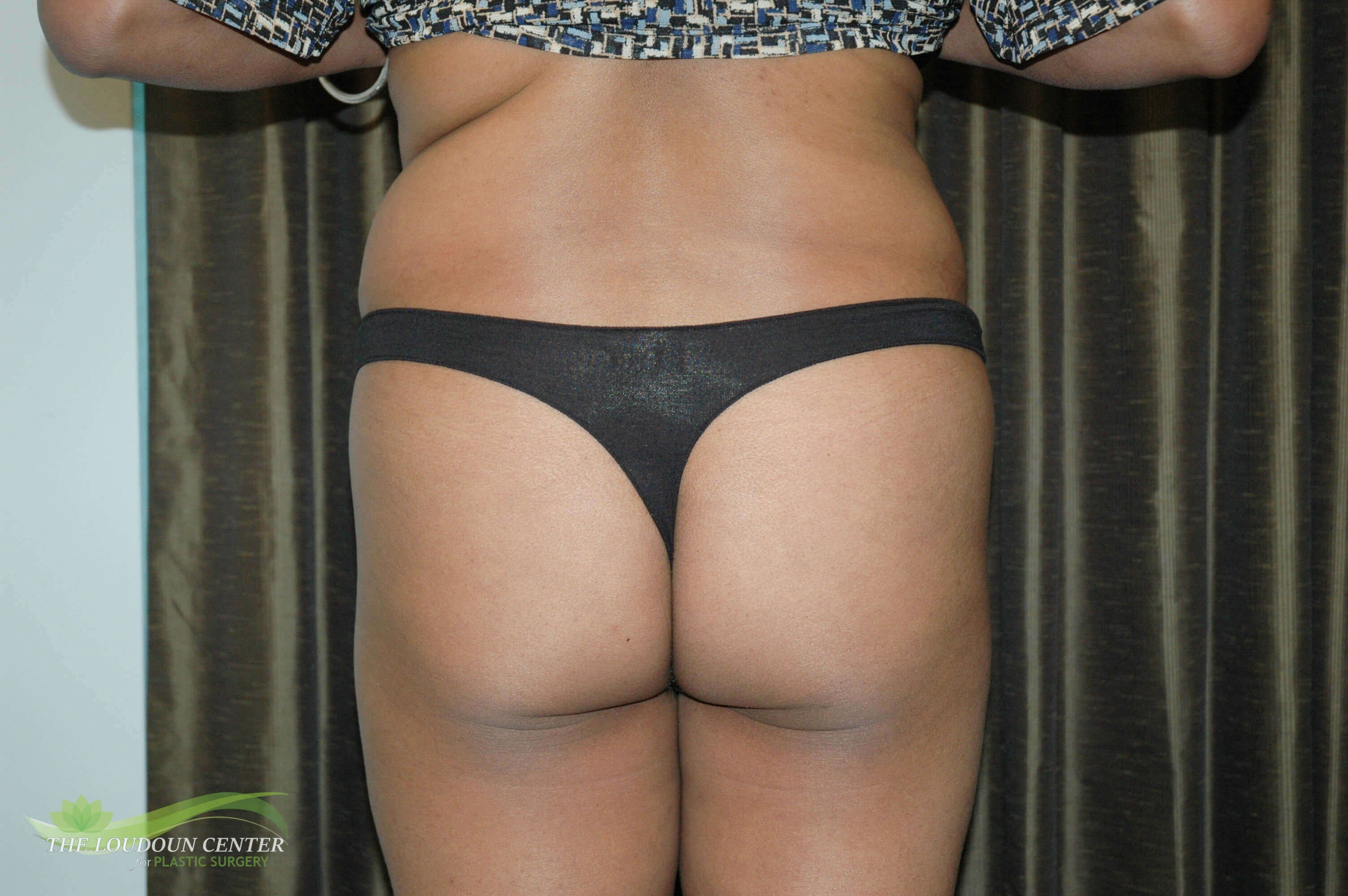 Buttock Augmentation - Back Before