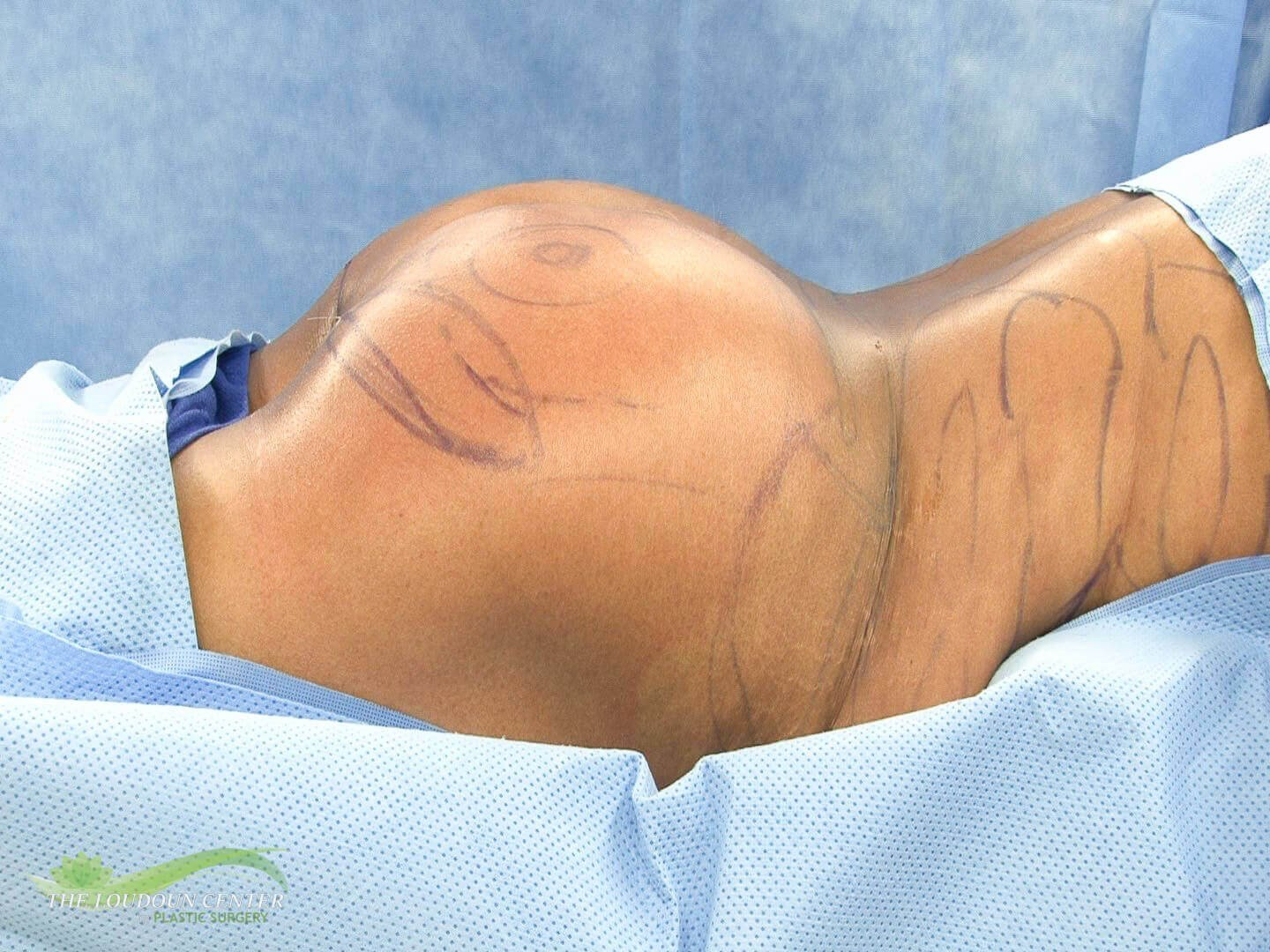 Buttock Augmentation After