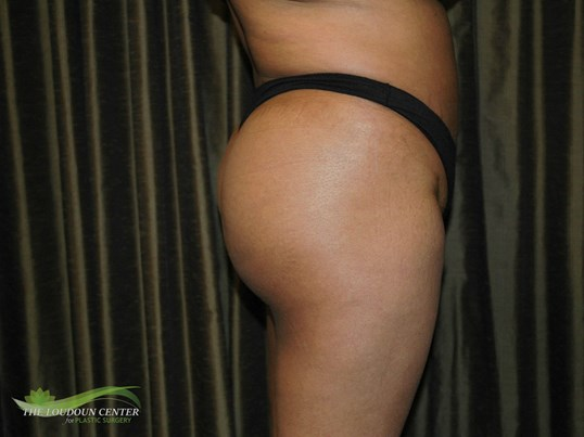Buttock Augmentation - Profile After