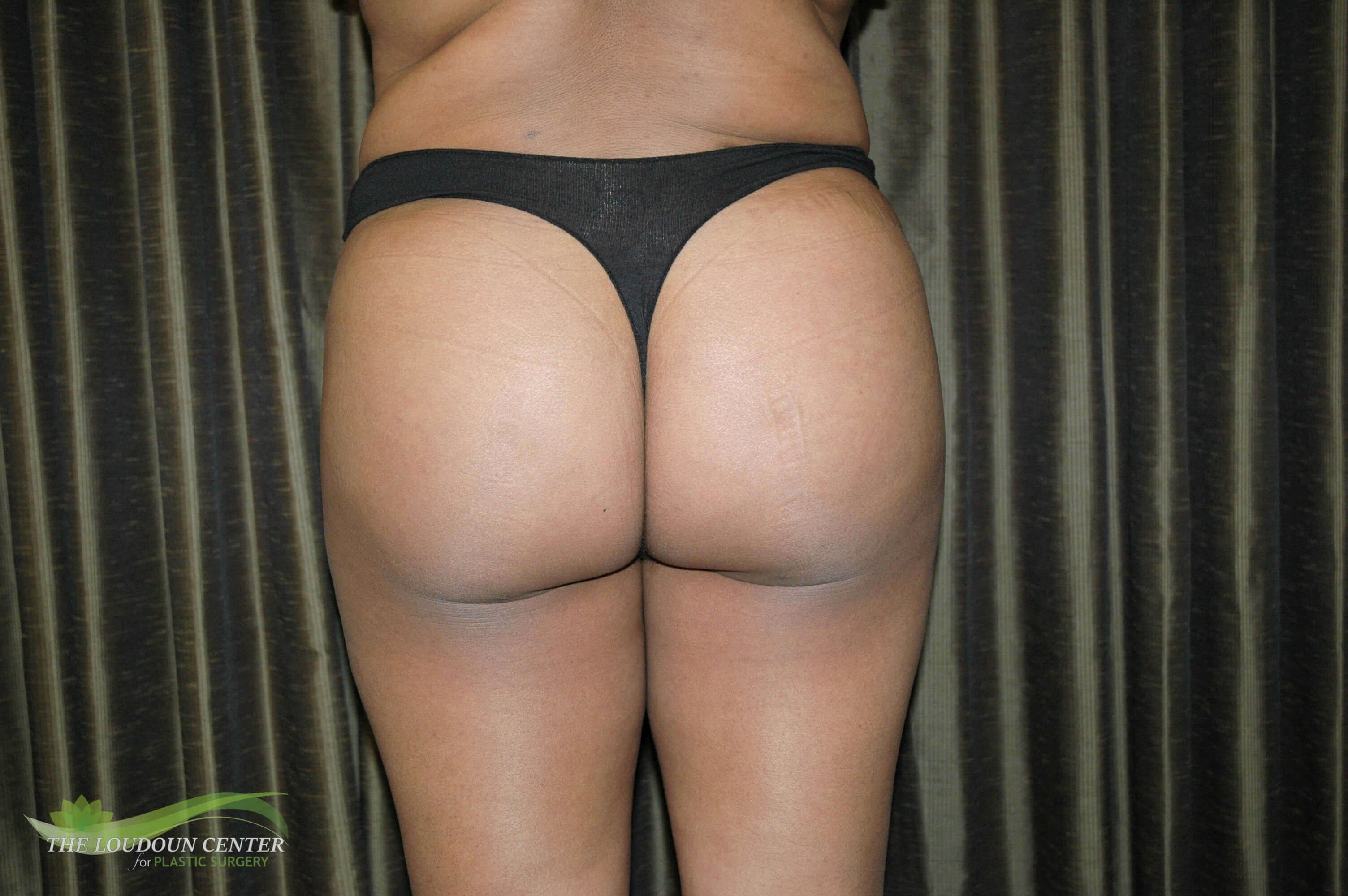 Buttock Augmentation - Back After