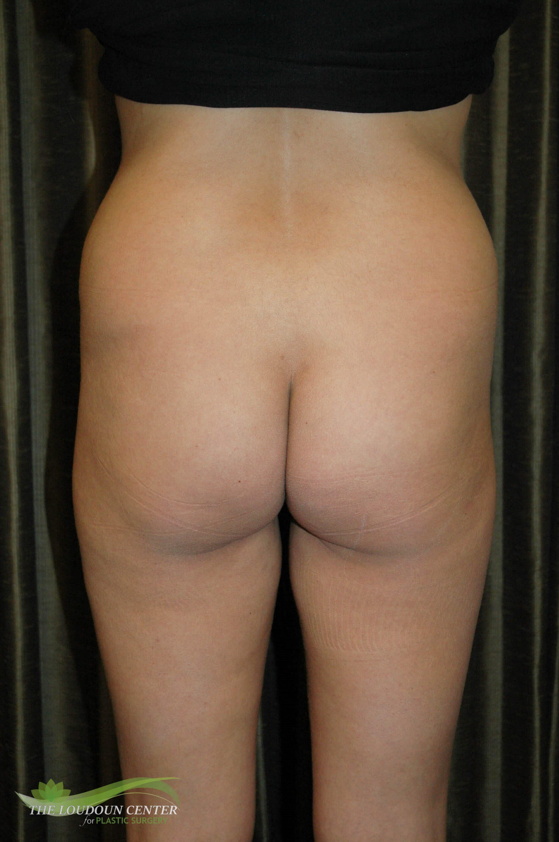 Buttock Augmentation Before