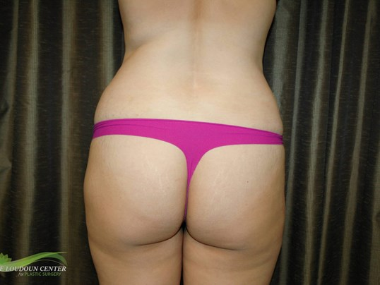 Buttock Augmentation - Rear Before