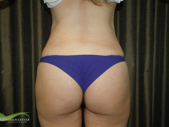 Buttock Augmentation - Rear After