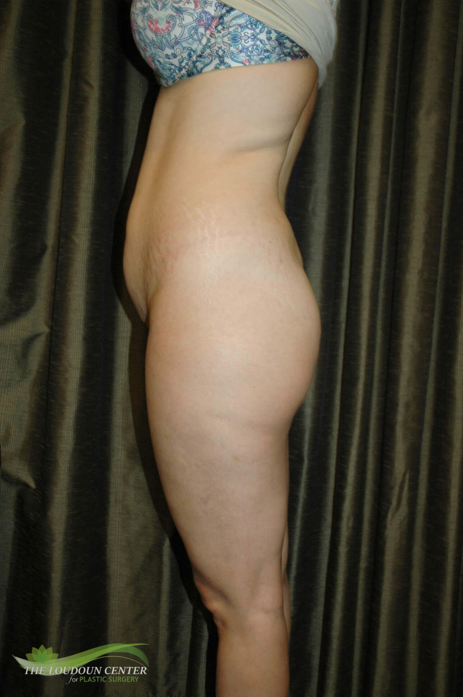 Buttock Augmentation - Profile Before