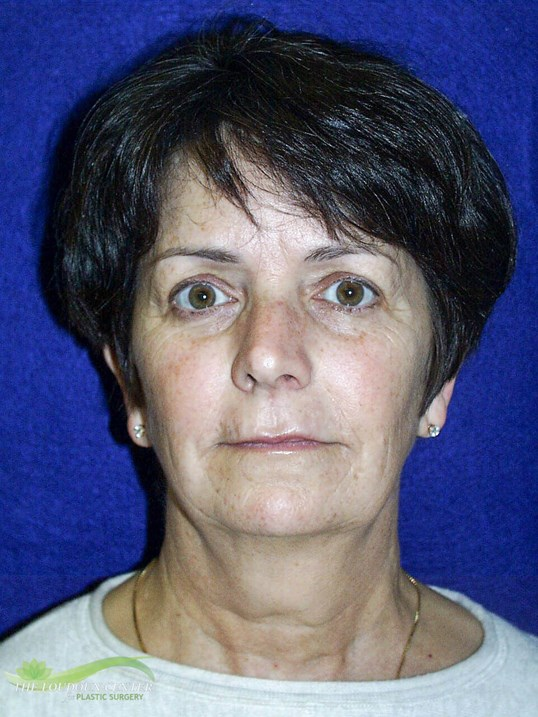 Facelift - Frontal Before