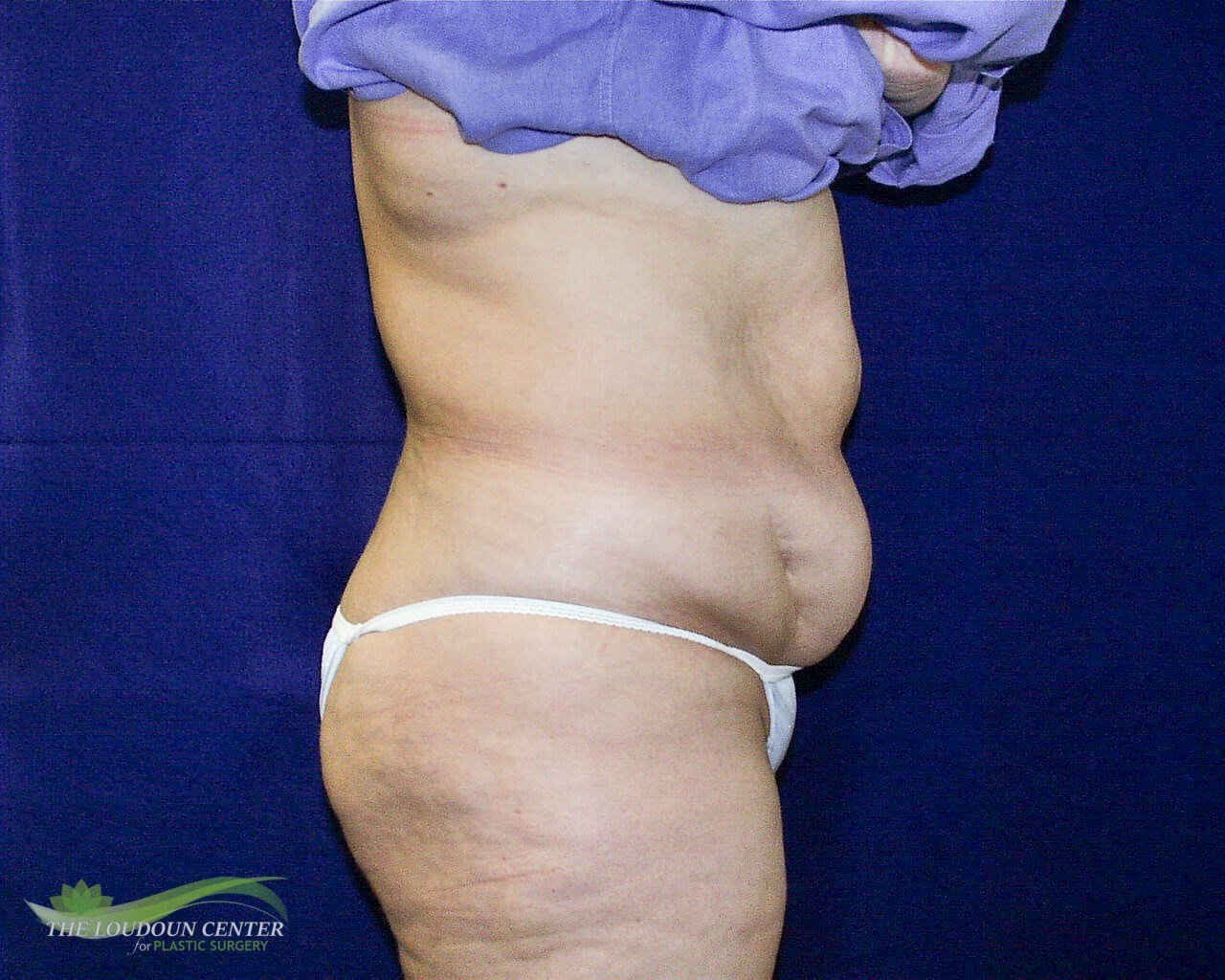 Tummy Tuck - Profile Before