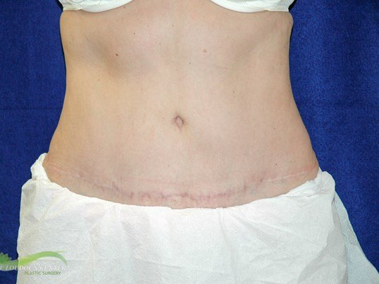 Tummy Tuck - Frontal After