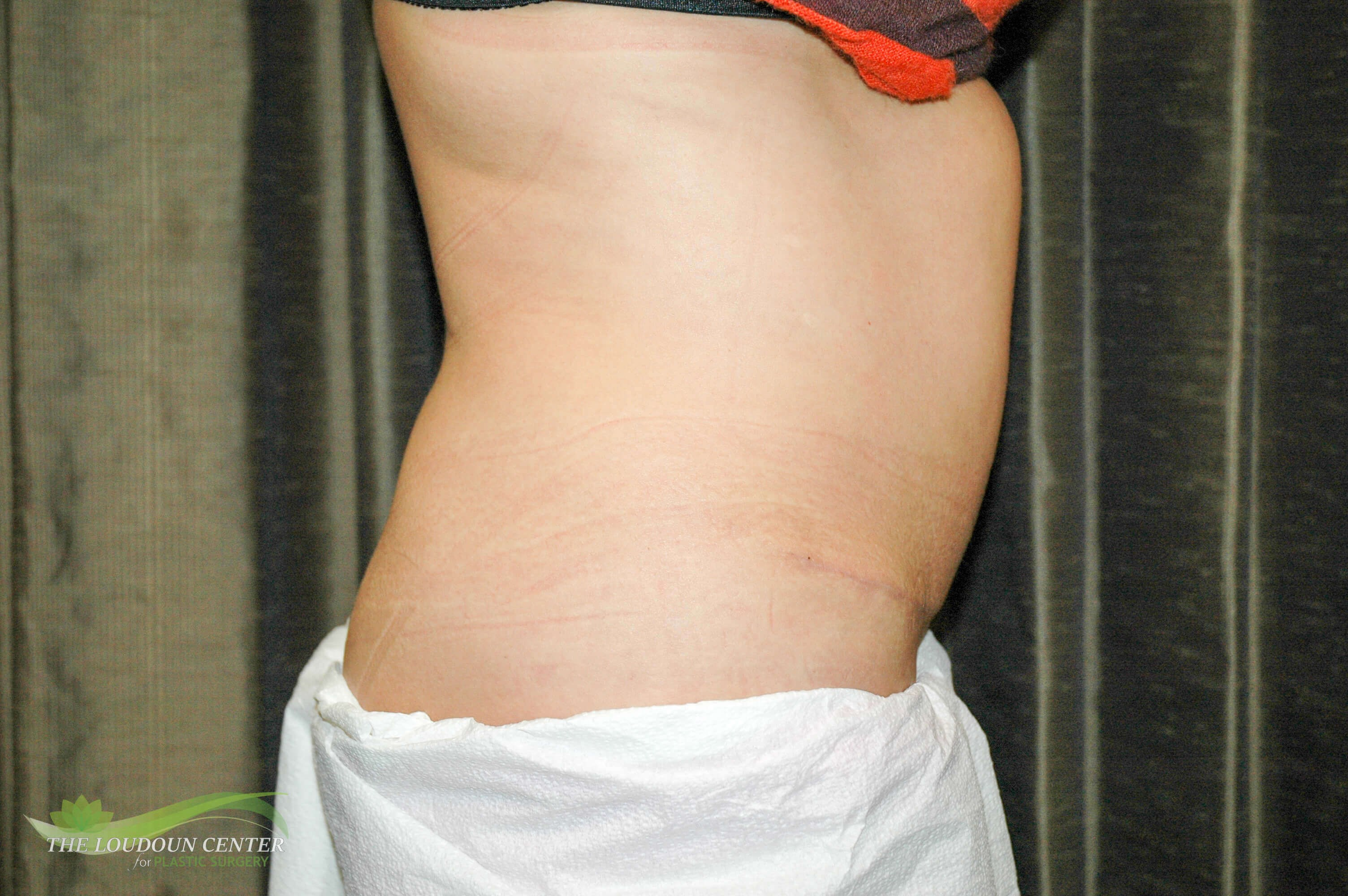 Tummy Tuck - Profile After