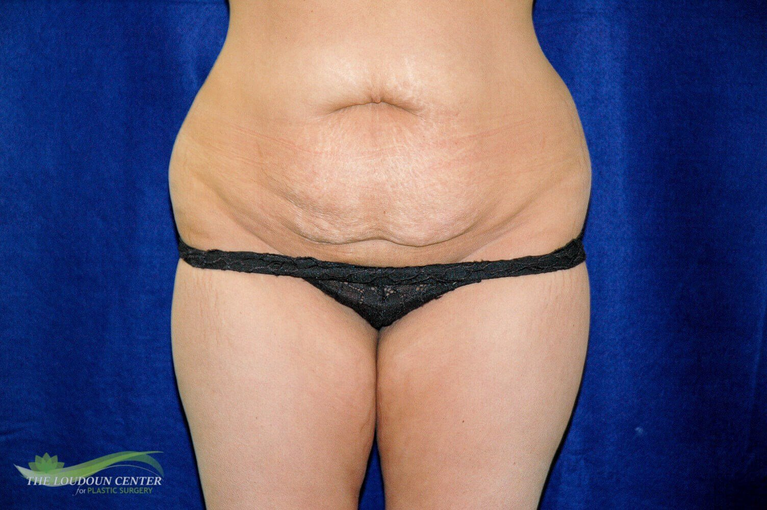 Tummy Tuck - Frontal Before