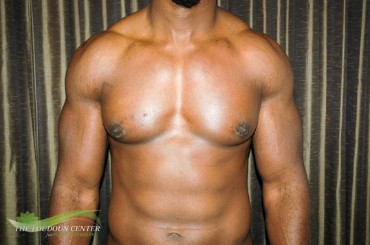 Gynecomstia After