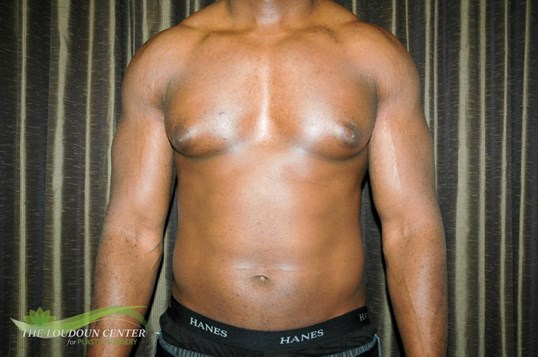 Gynecomstia Before