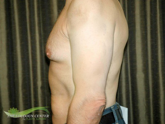Gynecomastia - Profile Before