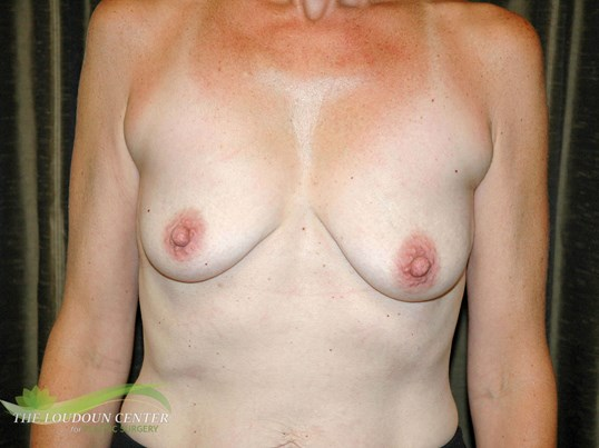 Breast Lift and Augmentation Before