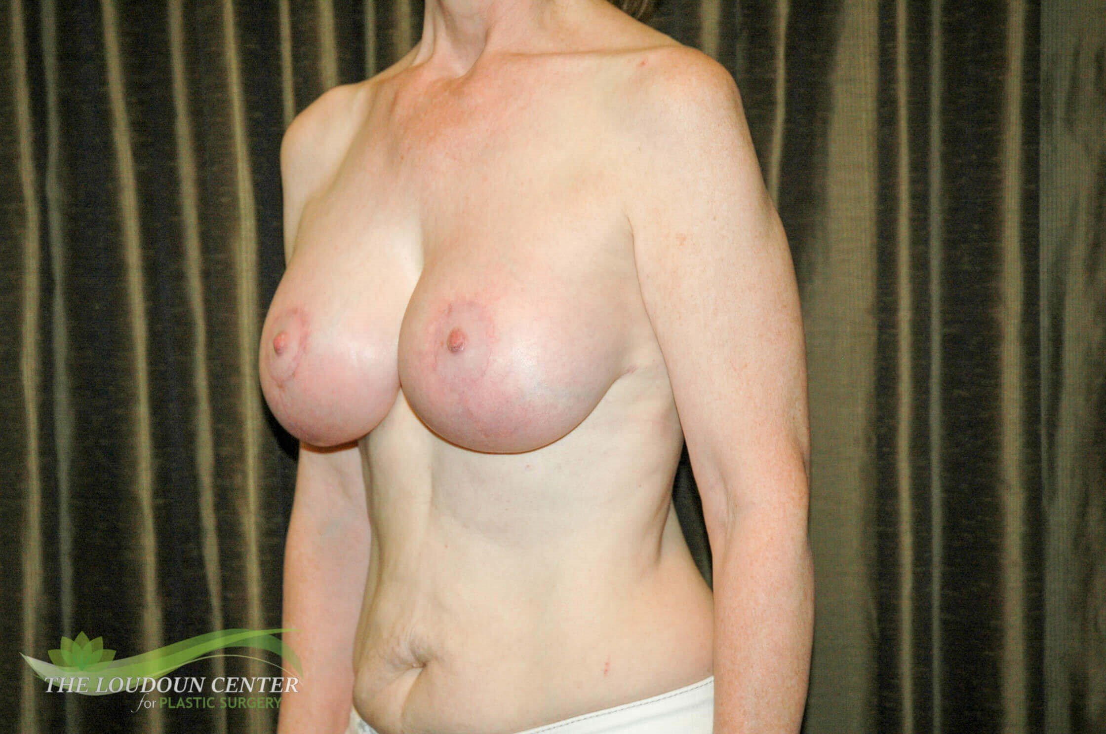 Breast Lift and Augmentation After