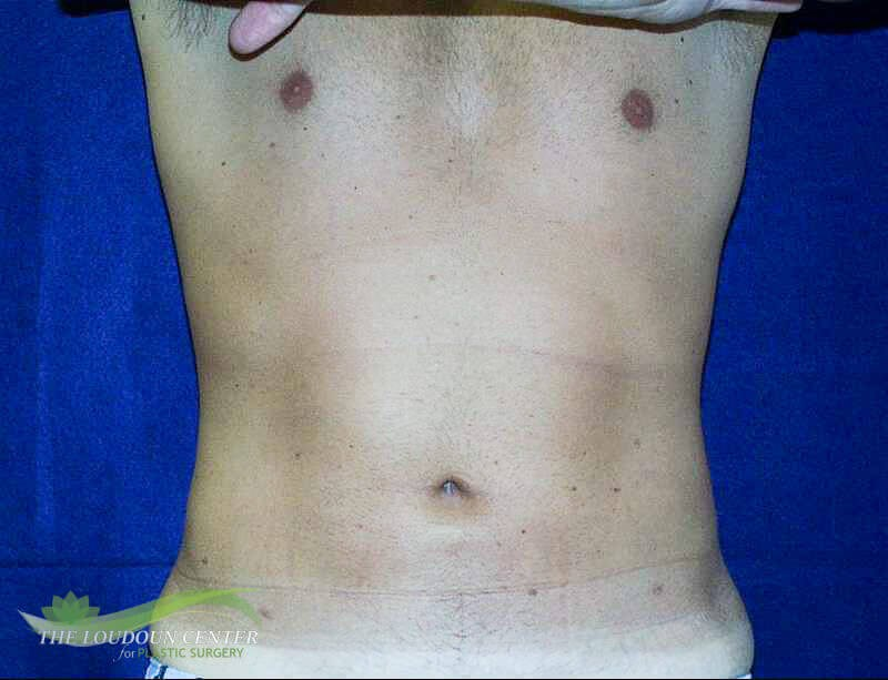 Male Liposuction Abdomen After