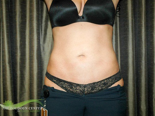 Liposuction Abdomen After