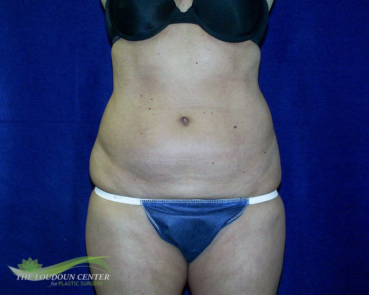 Liposuction Abdomen Before