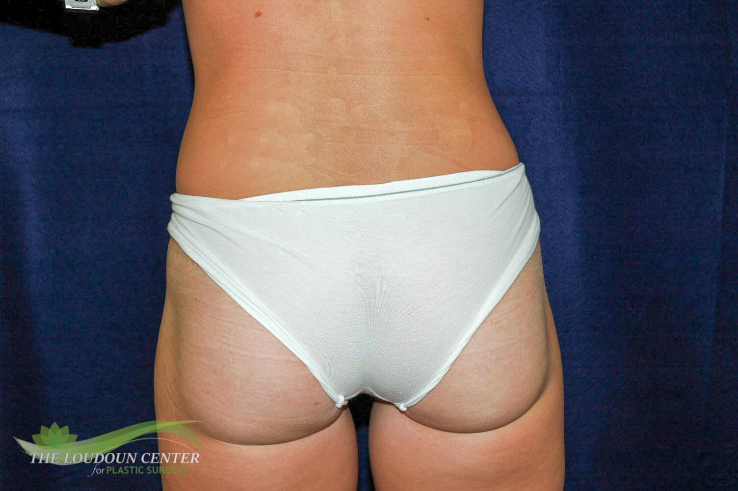 Liposuction Thighs After