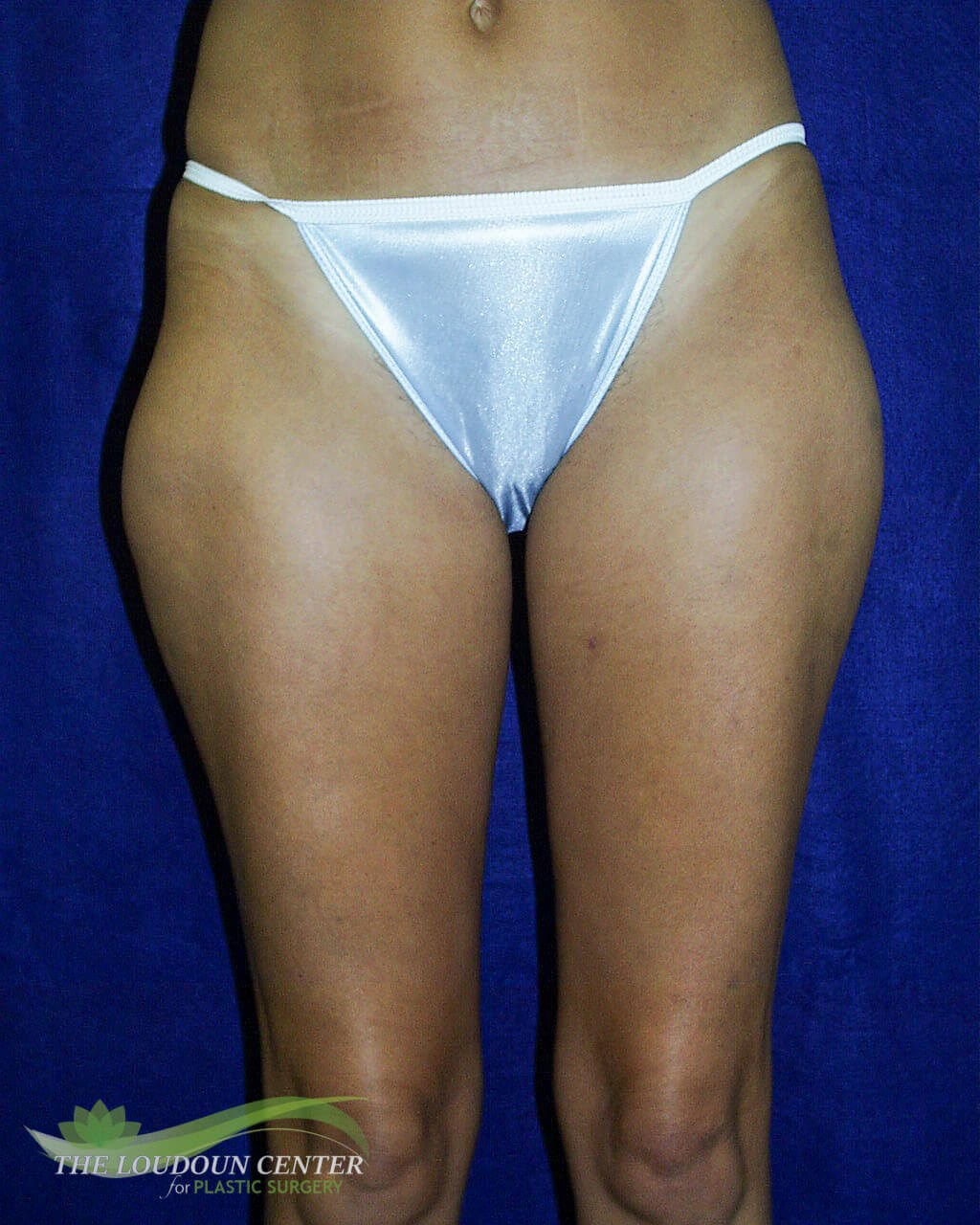 Liposuction Thighs Before