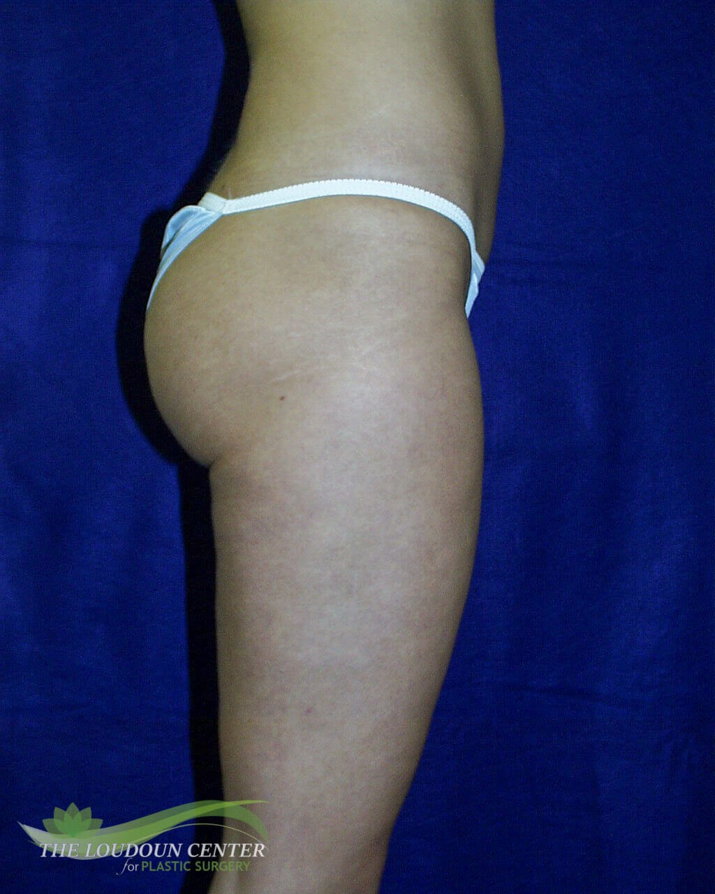 Liposuction Thighs and Hips After