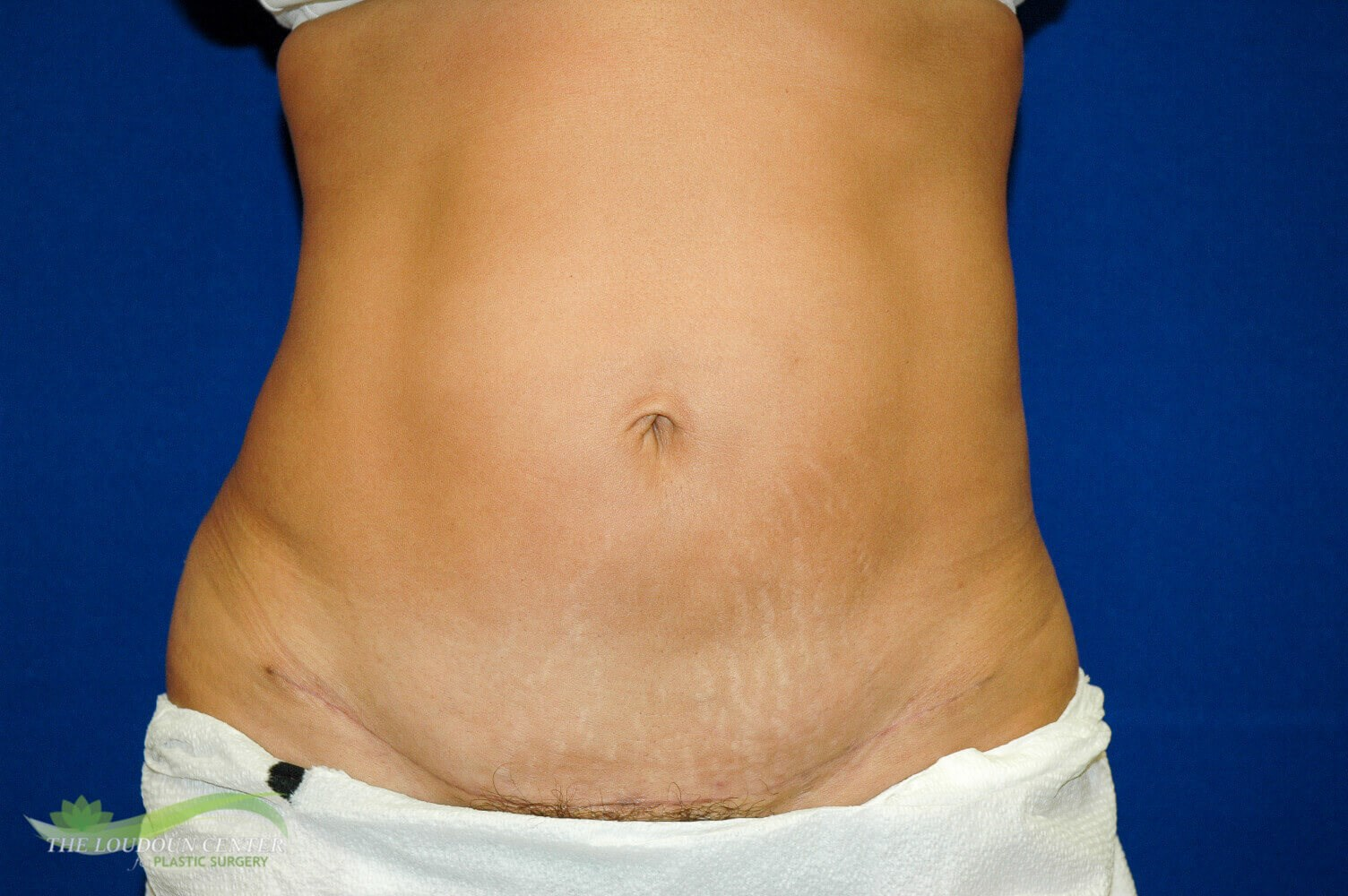 Mini Tummy Tuck Surgery After